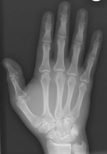 "Original cover art for ""The National Institute of Musical Healing."" It's an X-Ray of my fractured second metacarpal."